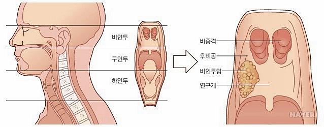 김우빈 비인두암 이게 무슨 청천벽력?