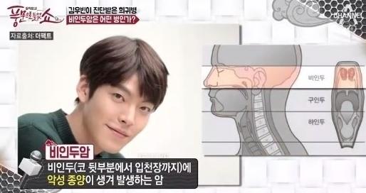 '비인두암' 김우빈