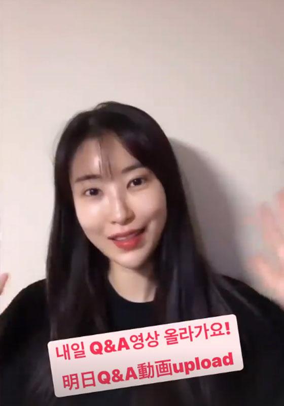 개그맨 이세영 맞아?…쌍꺼풀+앞트임 후 확 달라진 미모